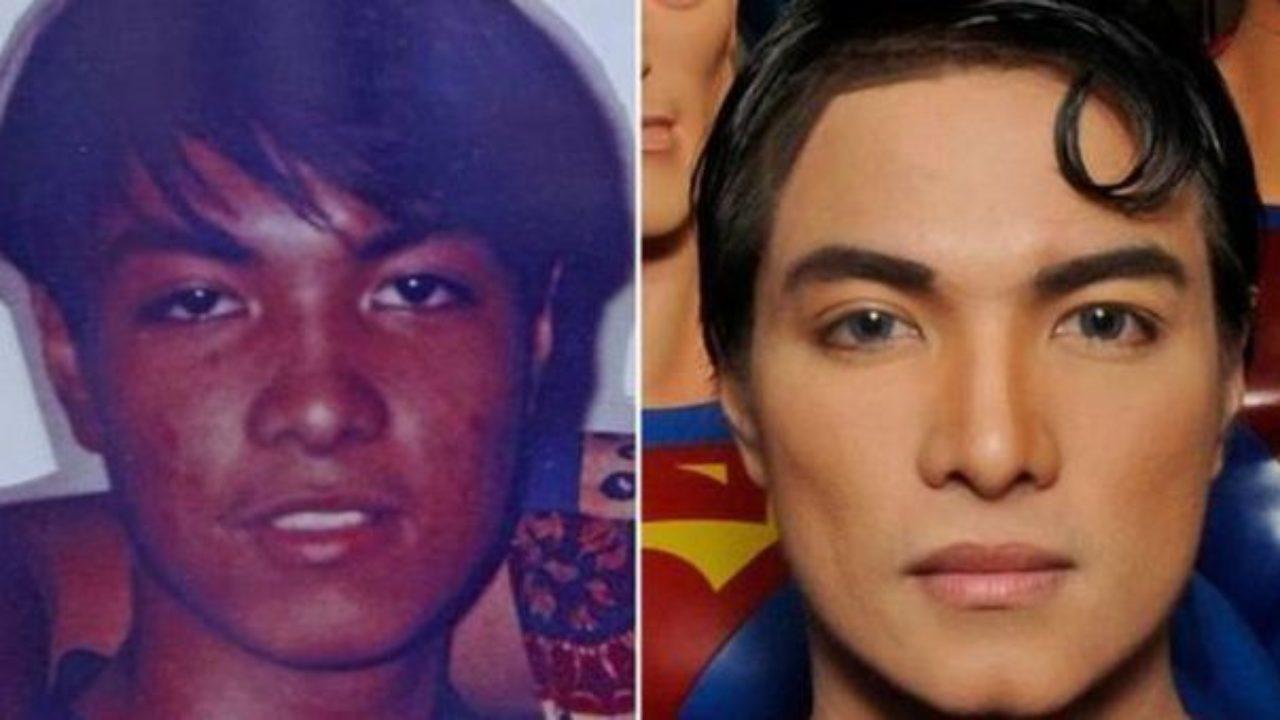 Per assomigliare a Superman si sottopone a 23 operazioni chirurgiche